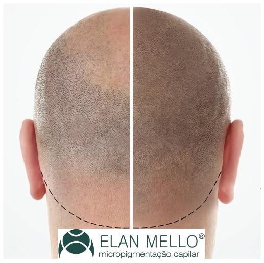 cabeça com calvície antes depois da micropigmentação capilar