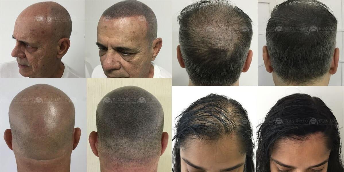 fotos de micropigmentação capilar em homens e mulheres