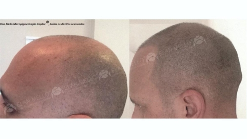 micropigmentacao-capilar-cabelo-rapado-portugal-(4)