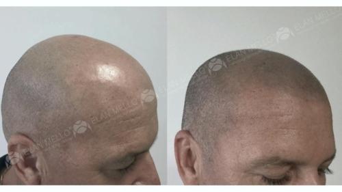 micropigmentacao-capilar-cabelo-rapado-sao-paulo-(1)