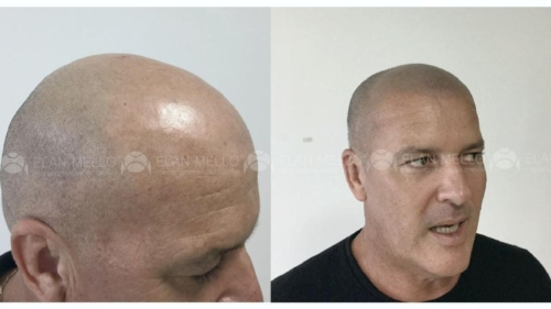 micropigmentacao-capilar-cabelo-rapado-sao-paulo-(2)
