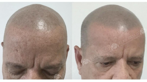 micropigmentacao-capilar-cabelo-rapado-sao-paulo-(3)
