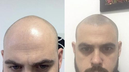 micropigmentacao-capilar-cabelo-rapado-sao-paulo