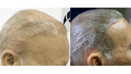 micropigmentacao-capilar-fundo-cabelo-branco-sao-paulo (1)
