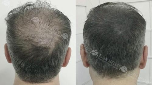 micropigmentacao-capilar-fundo-cabelo-grisalho-sao-paulo-(1)