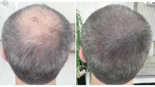 micropigmentacao-capilar-fundo-cabelo-grisalho-sao-paulo