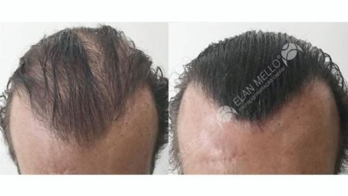 micropigmentacao-capilar-fundo-transplante-sao-paulo-(12)