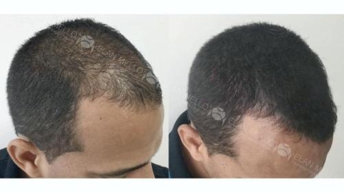 micropigmentacao-capilar-fundo-transplante-sao-paulo-(14)