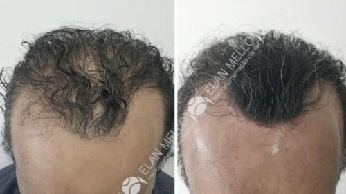 micropigmentacao-capilar-fundo-transplante-sao-paulo-(3)