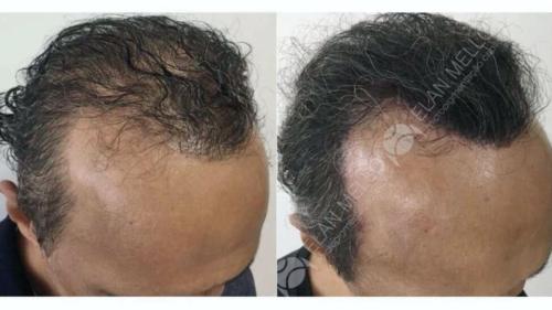 micropigmentacao-capilar-fundo-transplante-sao-paulo-(9)