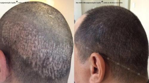 micropigmentacao-capilar-sao-paulo-cicatriz-transplante-(1)