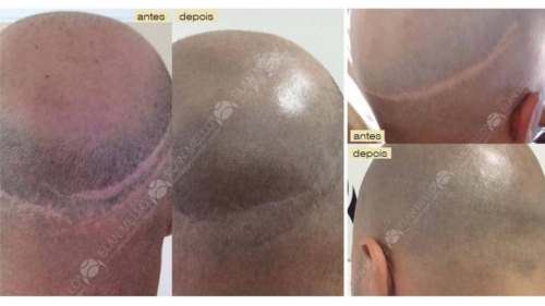 micropigmentacao-capilar-sao-paulo-cicatriz-transplante-(2)