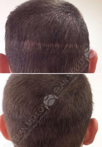 micropigmentacao-capilar-sao-paulo-cicatriz-transplante