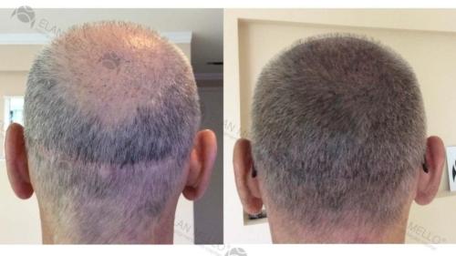 micropigmentacao-capilar-sao-paulo-fundo-cabelo-grisalho-(2)