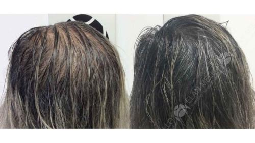 micropigmentacao-capilar-sao-paulo-fundo-calvicie-feminina-(1)