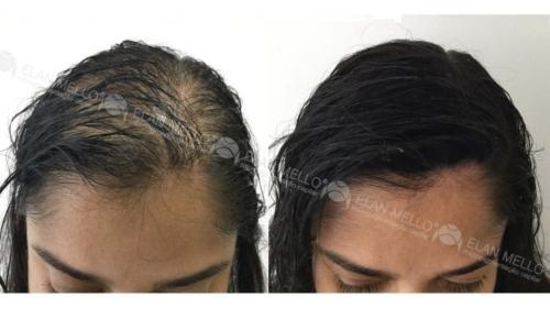 micropigmentacao-capilar-sao-paulo-fundo-calvicie-feminina-(11)
