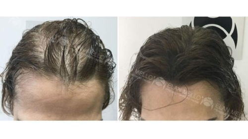 micropigmentacao-capilar-sao-paulo-fundo-calvicie-feminina-(7)