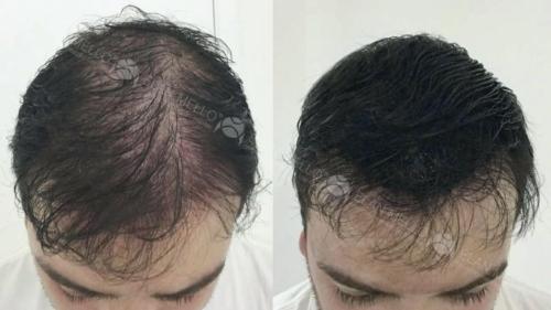 micropigmentacao-capilar-sao-paulo-fundo-transplante-(2)