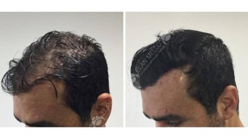 micropigmentacao-capilar-sao-paulo-fundo-transplante-(7)a